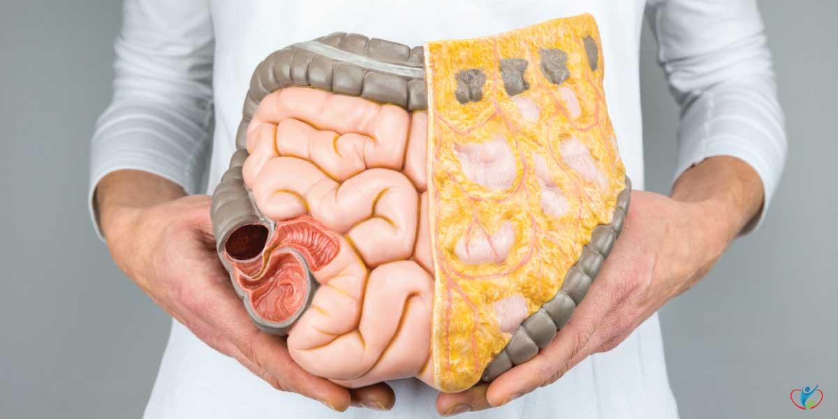 Abdominal Fat, a Serious Health Problem